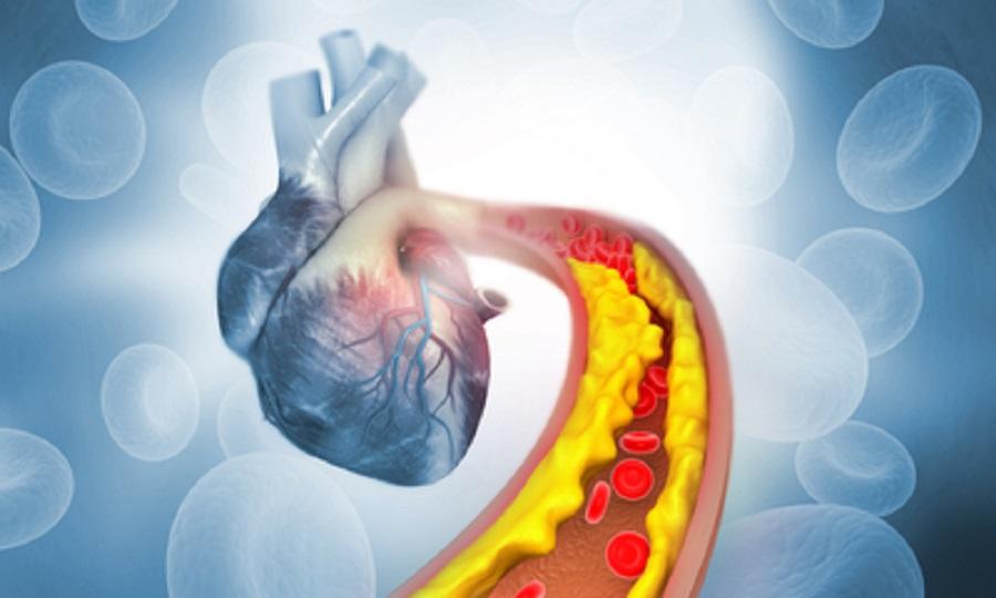 Два внешних признака высокого уровня холестерина в крови